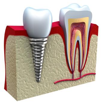 Implanty Krawdent