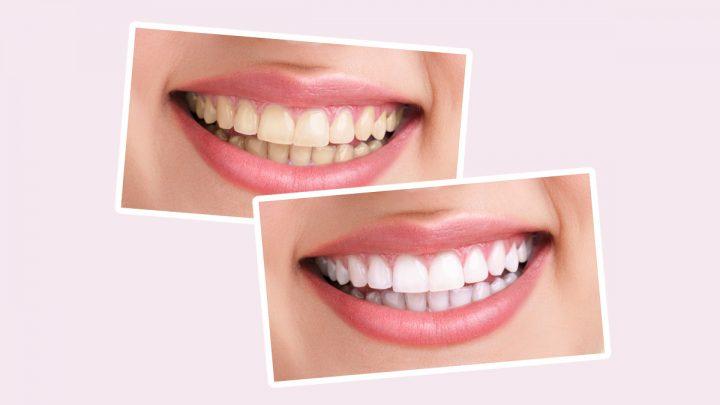 Zęby wybielone metodą laserową